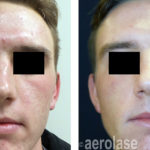 NeoClear Acne - After 3 Treatments - Kevin Pinski MD