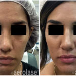 NeoClear Acne - After 4 Treatments - Mark Nestor MD