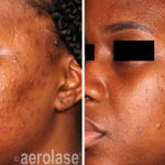 NeoClear Acne - After 4 Treatments - Michelle Henry MD
