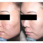 NeoClear Acne - After 6 Treatments - Spade Skin Care