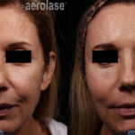 NeoSkin Rejuvenation - After 2 Treatments combined with threads and filler - One Aesthetics