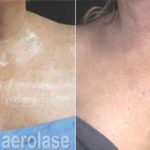 NeoSkin Rejuvenation - After 4 Treatments - Jason Emer MD