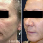 NeoSkin Rejuvenation - After 4 Treatments - Kevin Pinski MD