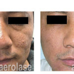 NeoSkin Rejuvenation - After 7 Treatments - Fran Cook-Bolden MD