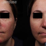 NeoSkin Rosacea - 1 Week After 1 Treatment - One Aesthetics