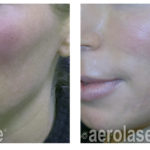 NeoSkin Rosacea - After 1 Treatment - Kevin Pinski MD
